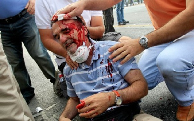 Ο Γιώργος Χαρίσης χτυπημένος στο κεφάλι από τα ΜΑΤ - Σύνταγμα 19 Ιούνη 2013. Φωτό iefimerida.gr